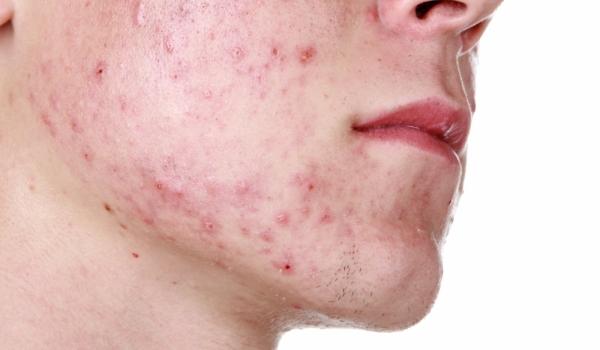 Хеликобактерийн гаралтай эмгэгийн 20-30 хувь нь хавдарт шилждэг