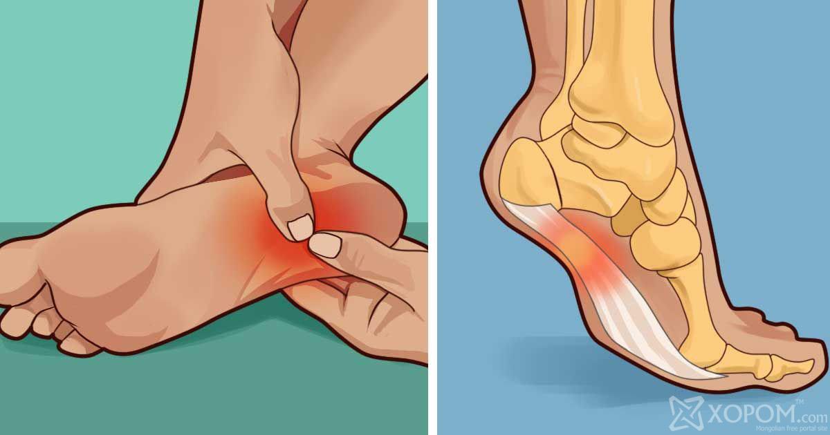 Эрдэмтэд хүмүүсийн хөл өвддөг гол шалтгааныг нэрлэжээ