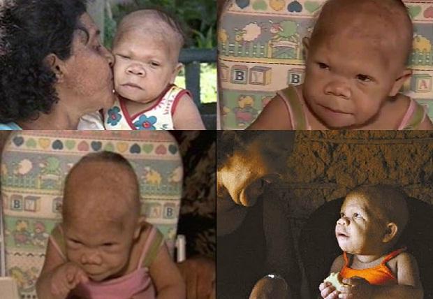 Есөн сартай хүүхэд шиг харагддаг Бразил бүсгүй