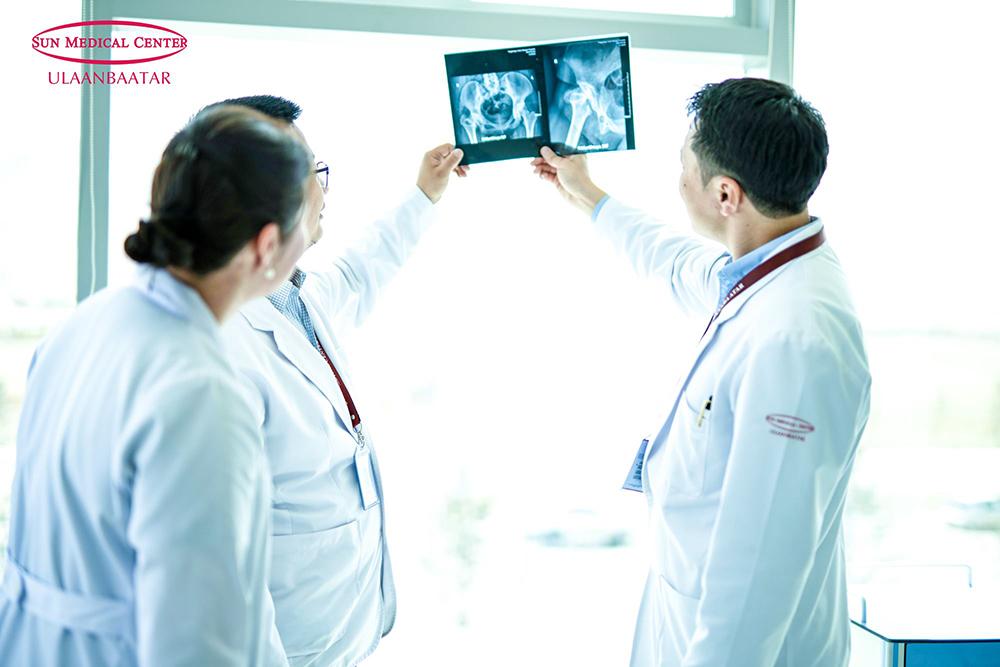 Өвдөгний үе солих мэс заслийн төгс эмнэлэг- Сон Медикал Улаанбаатар