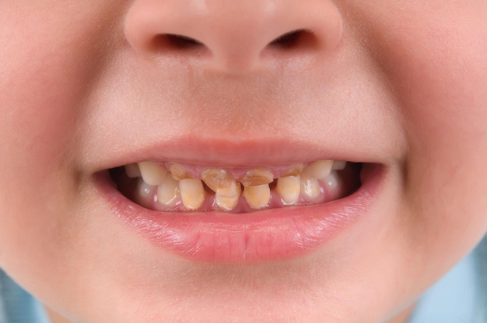 2-12 хүртэлх насны хүүхдийн шүдний эмчилгээний зардлыг ЭМД-ын сангаас гаргана
