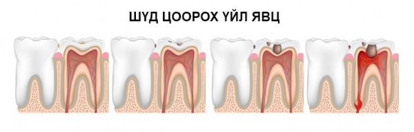 Шүдний хорхойг эмчгүйгээр эмчлэх боломжтой