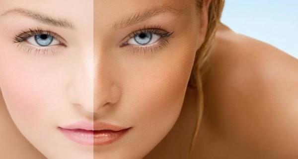 Наранд борлож, түлэгдсэн арьсыг цайруулж эмчлэх 7 арга
