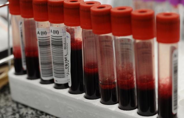 Хятадын эрдэмтэд цусны бүлгийг хоёрхон минутын дотор тодорхойлох аргыг нээжээ
