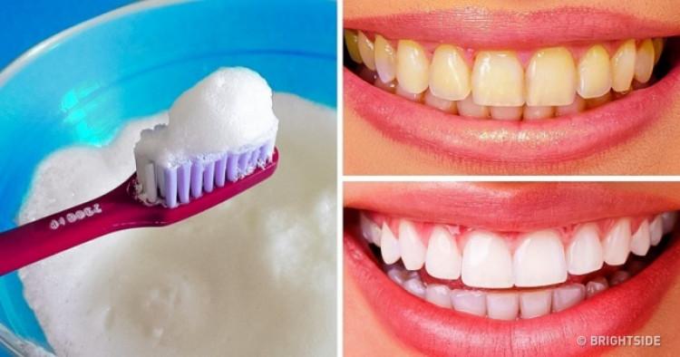 Гэрийн нөхцөлд шүдээ цайруулах энгийн арга
