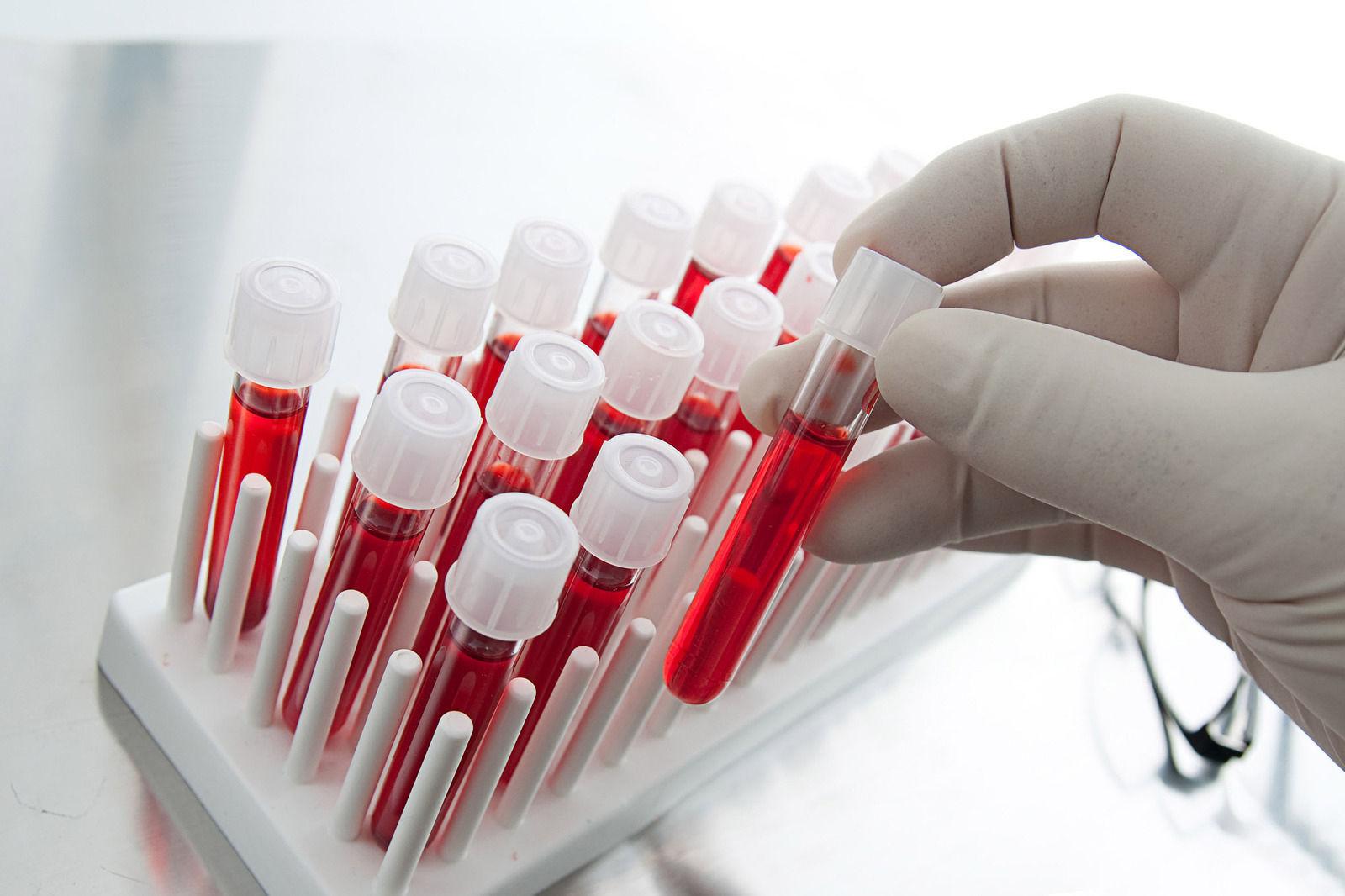 ХДХВ/ДОХ-ын дахин ГУРВАН тохиолдол бүртгэгджээ