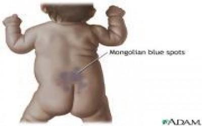 Эрдэмтэд Монголчуудын хөх толботой Төрдөгийн Нууц шалтгааныг Шинжлэх ухаанаар олжээ