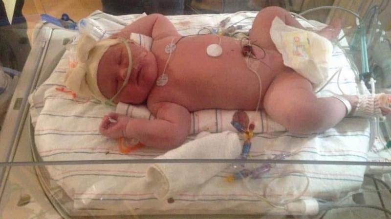 АНУ-д долоон кг жинтэй хүүхэд төржээ