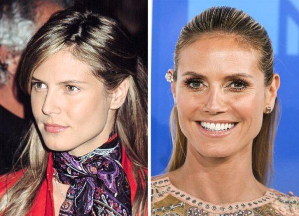 Өмнө нь илүү энгийн харагддаг байсан Холливудын үзэсгэлэнт 20 эмэгтэй